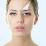 תמונת המחשה: שכבת עור, מתקלפת על גבי פנים של אישה